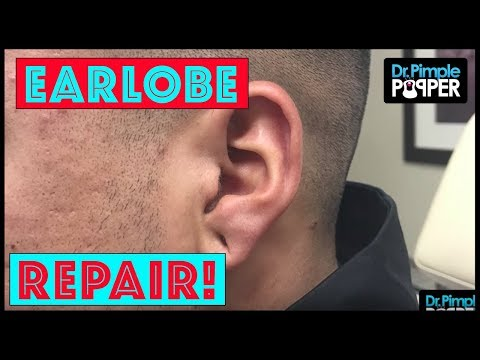 A Simple Earlobe Repair After Small Plugs