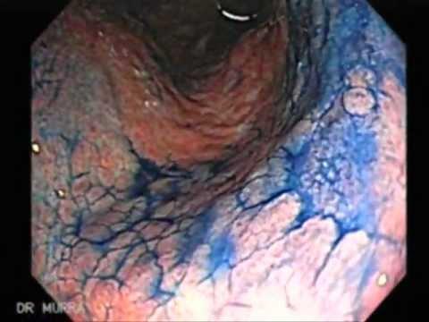Gastritis cronica folicular con actividad moderada