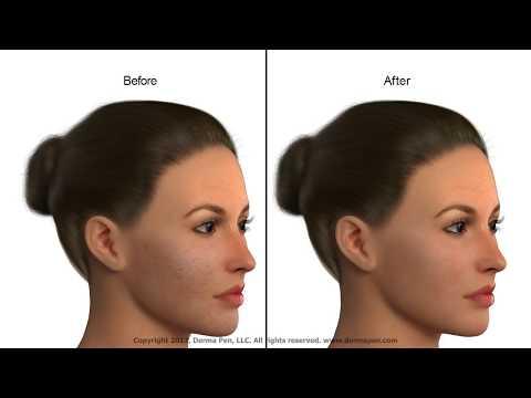 Jak działa mikronakłuwanie Dermapen? Klinka Medycyny Estetycznej Kosmedica w Warszawie