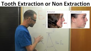 History of Teeth Alignment with Extraction or Non  Extraction Method in Orthodontics by Dr Mike Mew