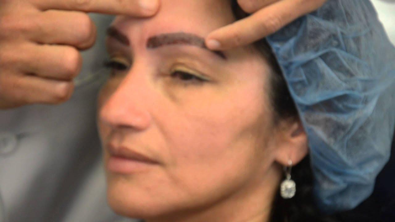 Dr Jeffrey Epstein Post Eyebrow Enhancement Surgery Youtube