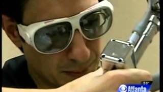 Laser Hair Removal on CBS News Thumbnail
