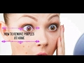 How to remove pimples at home.Get bright ,clear complexion  पिम्पल्स कैसे हटायें