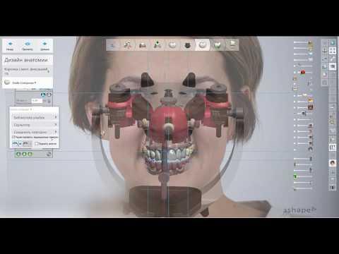Кайфанул сегодня. Что бы еще нужно было зубному технику??? И функция и эстетика и все под рукой!