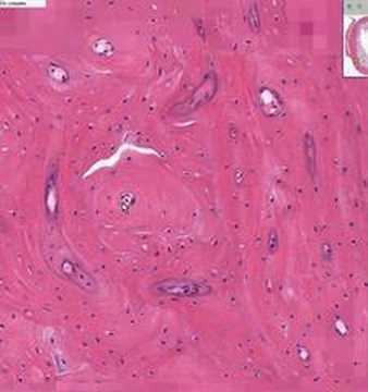 Shotgun Histology Dense Bone