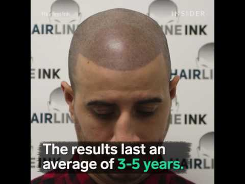 INSIDER BEAUTY Features Hairline Ink For Mens Balding Solution