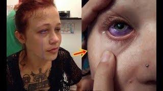 Cô gái bỗng nhiên bị chảy nước mắt màu tím, đi khám bác sĩ nói 1 câu mà chỉ biết câm nín