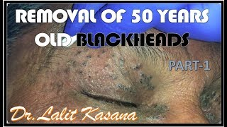 HAVING BLACKHEAD FROM LAST 50 YEARS- REMOVAL BY DR LALIT KASANA