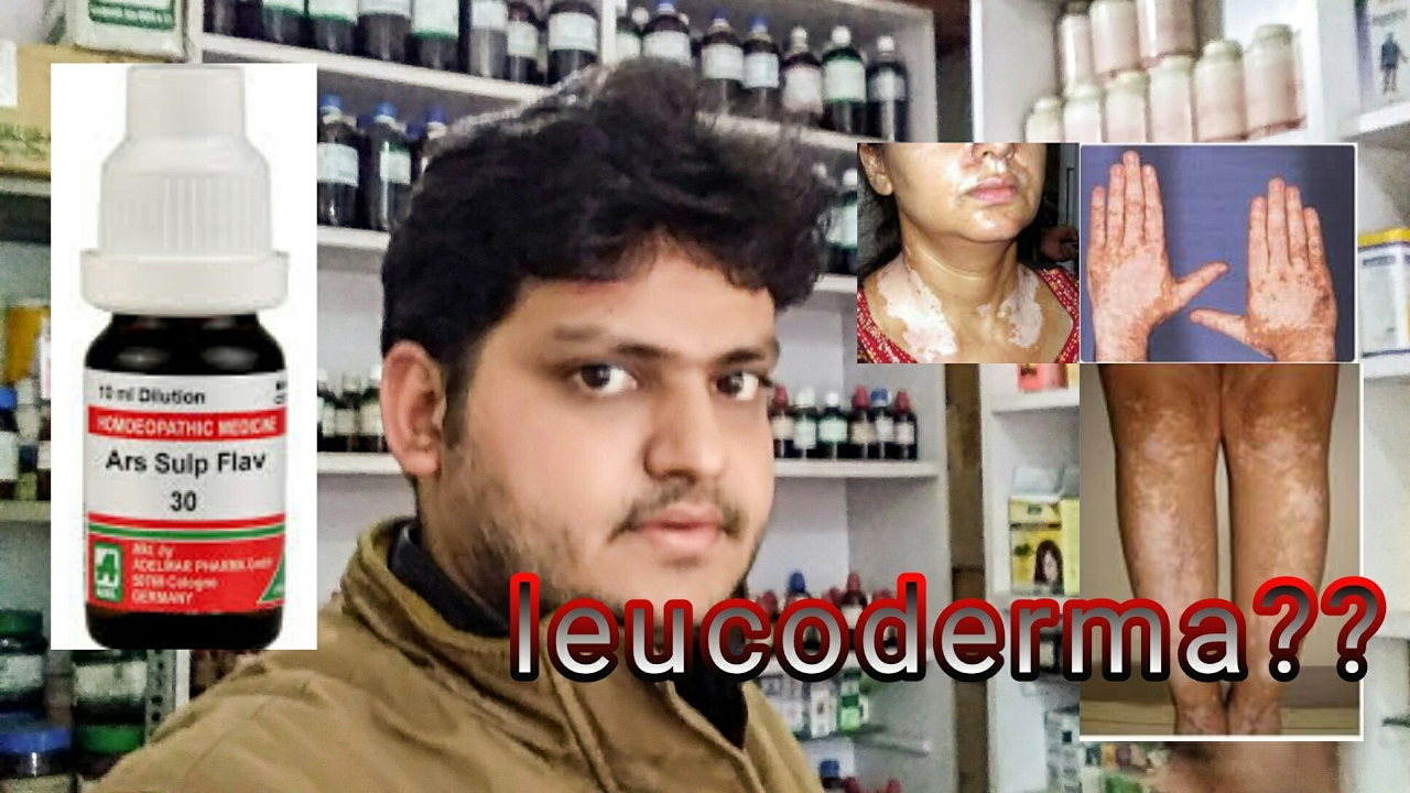 Leucoderma Vitiligo Treatment By Homeopathic Medicine Explain Youtube