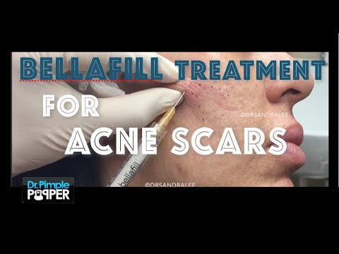 Bellafill: Permanent Filler injections for Acne Scars