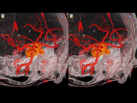Ivan Hoyt | Pituitary adenoma.