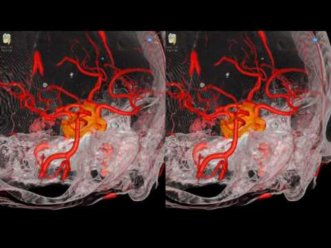 Pituitary Tumor - 3D Virtual Tour | UCLA Neurosurgery