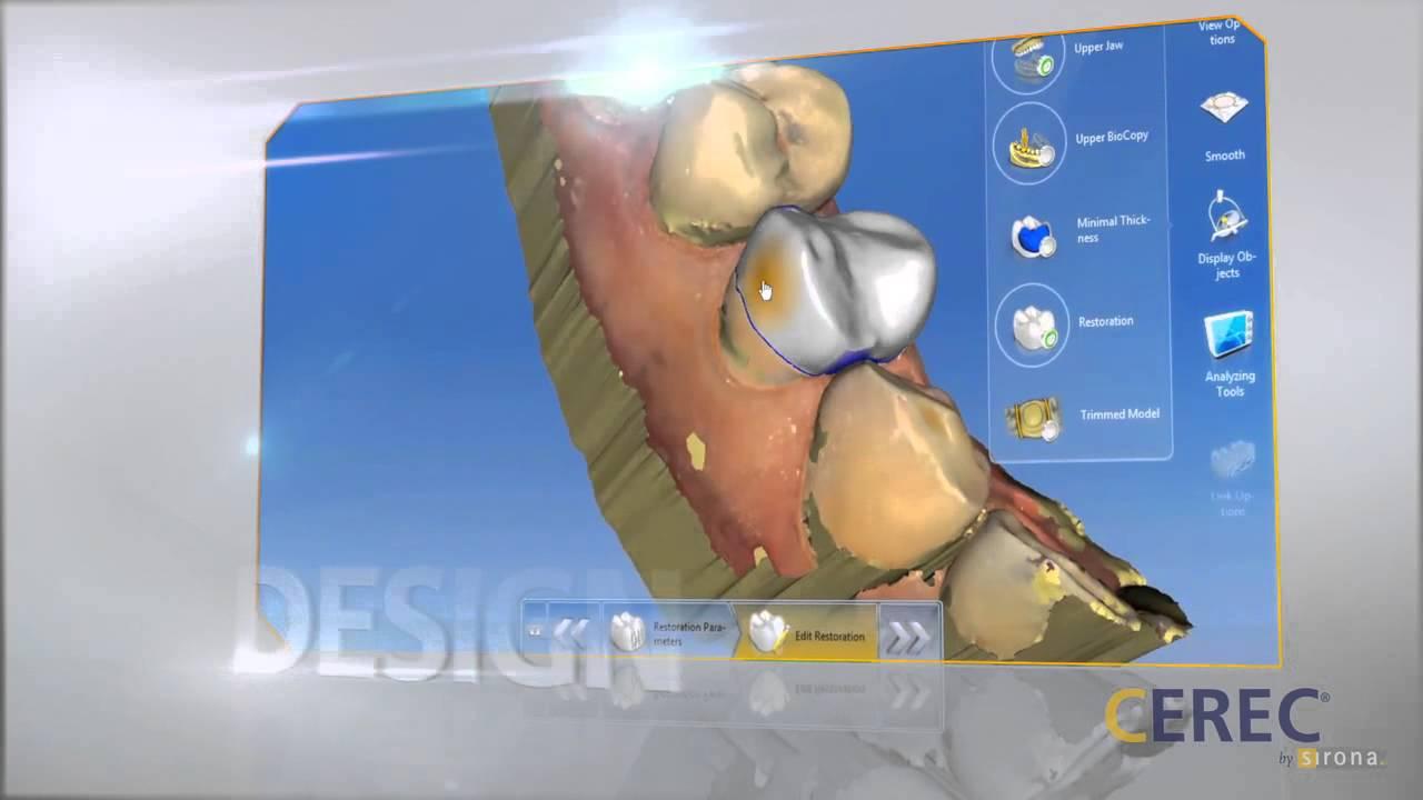 CEREC Dental Restorations