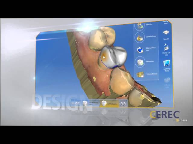 CEREC Dental Restorations