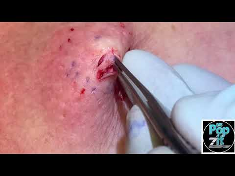 Chest popper blackhead with underlying cyst. Big squeeze and cyst pop. Full excision and closure.