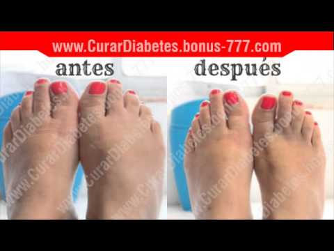 remedios para los pies hinchados por diabetes