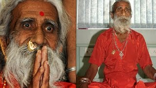 Man Has Not Eaten Food In 75 Yrs - Confirmed By Doctors