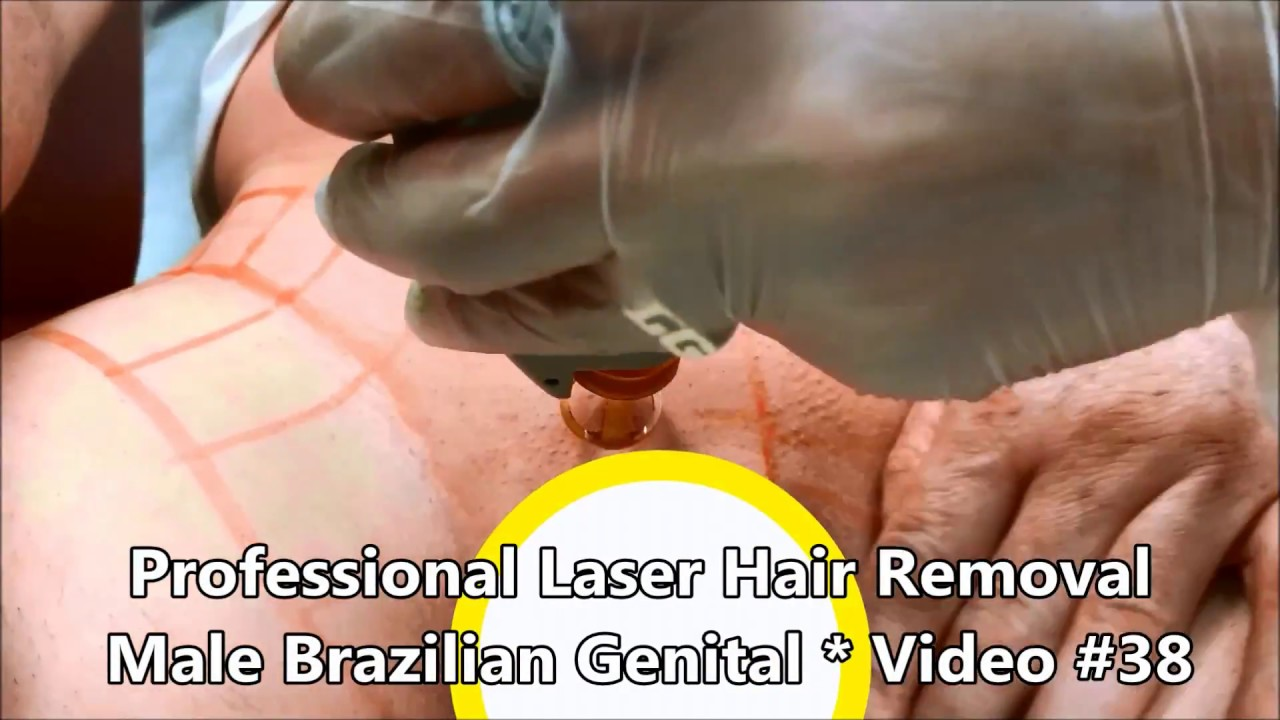 Professional Laser Hair Removal Male Brazilian Genital Video