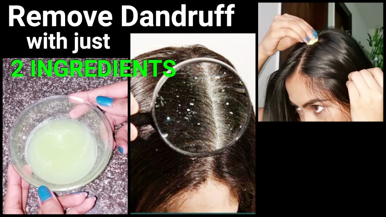 How to control Dandruff in my hair, some Remedies?