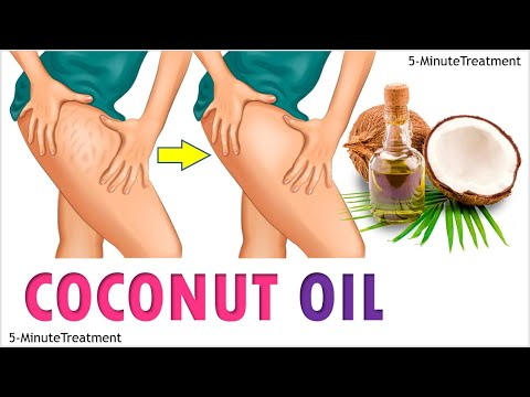 10 Surprising Uses Of Coconut Oil You Should Try | Coconut Oil Benefits | 5-Minute Treatment