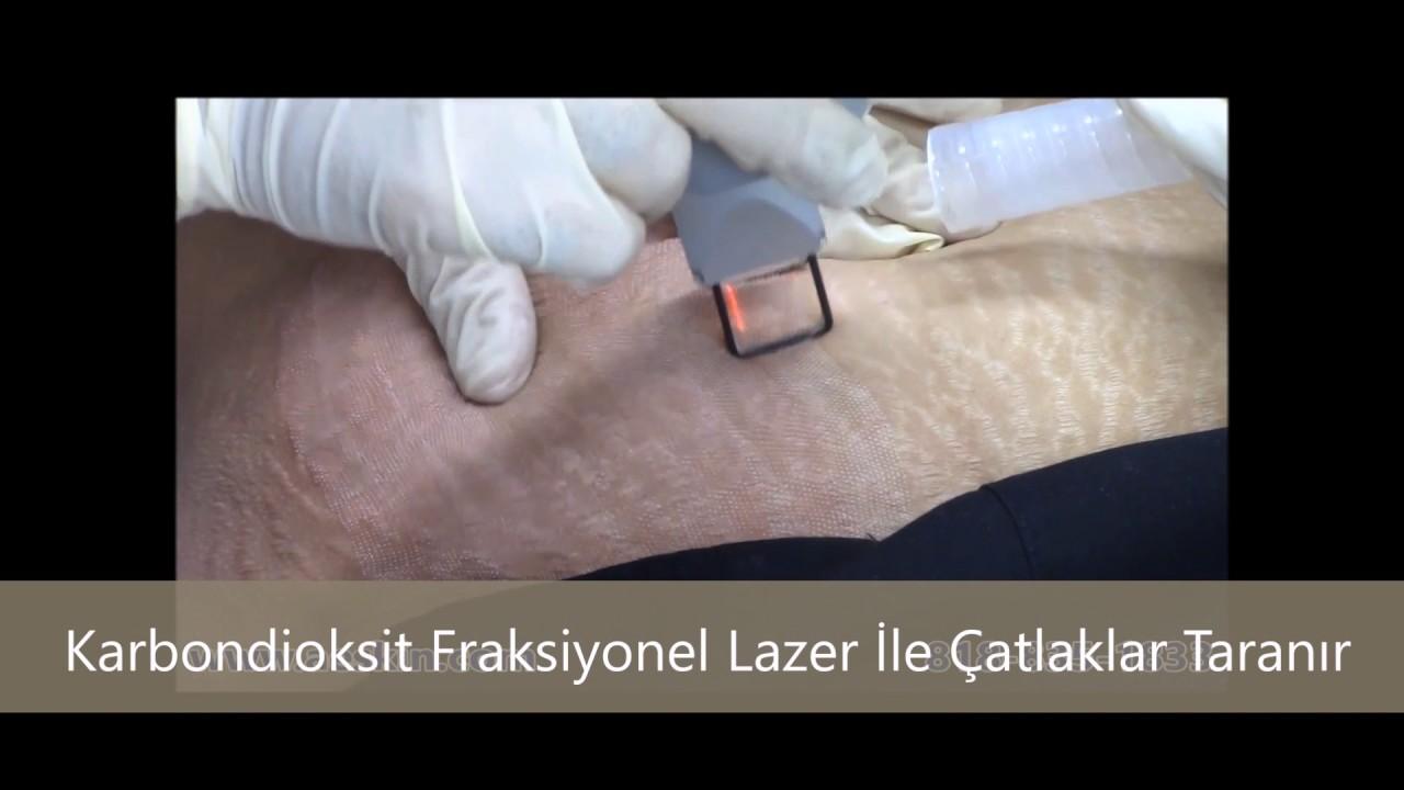 Cilt Çatlaklarına Lazer Tedavisi: Lazerle Cilt Çatlağı Tedavisi