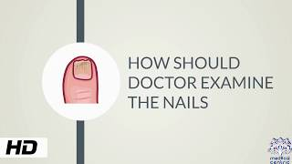HOW AND WHY SHOULD DOCTOR EXAMINE THE NAILS?