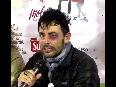 Beto Cuevas Se Cae 90s Pop Tour Youtube