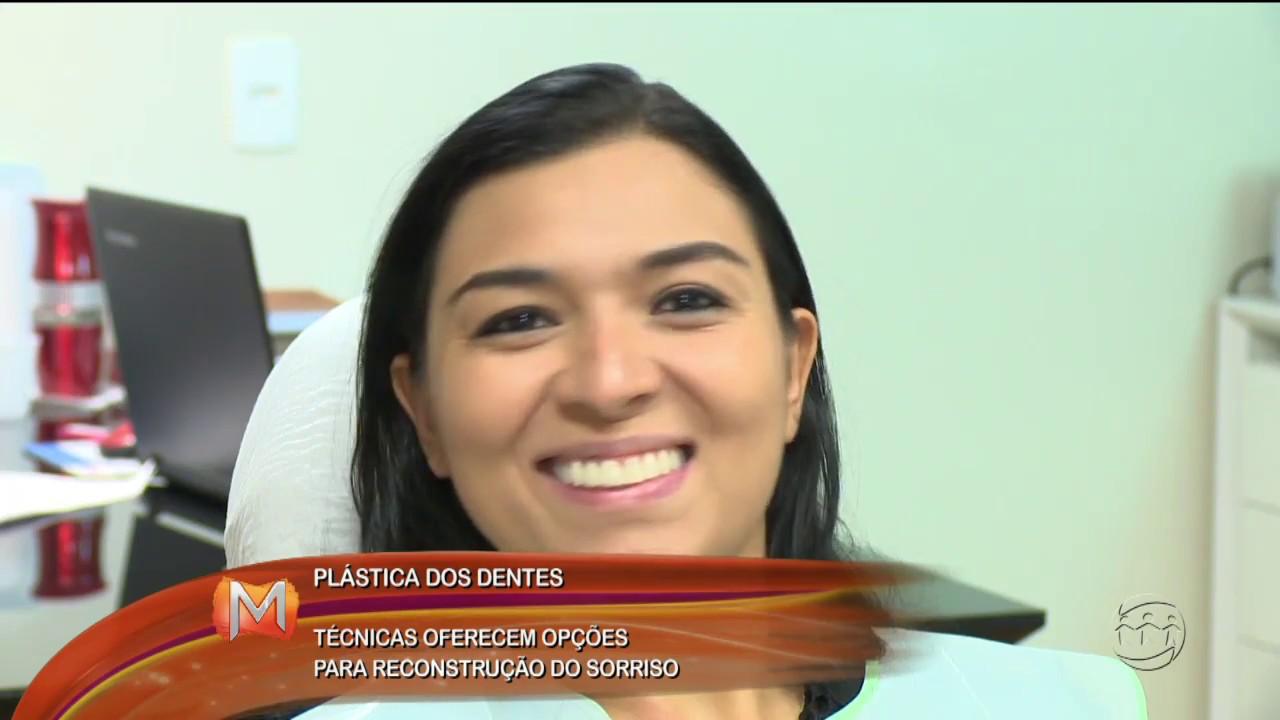 Plasticas Dos Dentes Confiras Tecnicas De Reconstrucao Do Sorriso