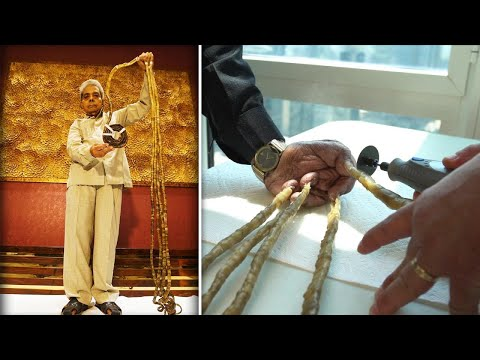 Indian Man With World's Longest Fingernails Flies to New York to Have Them Cut