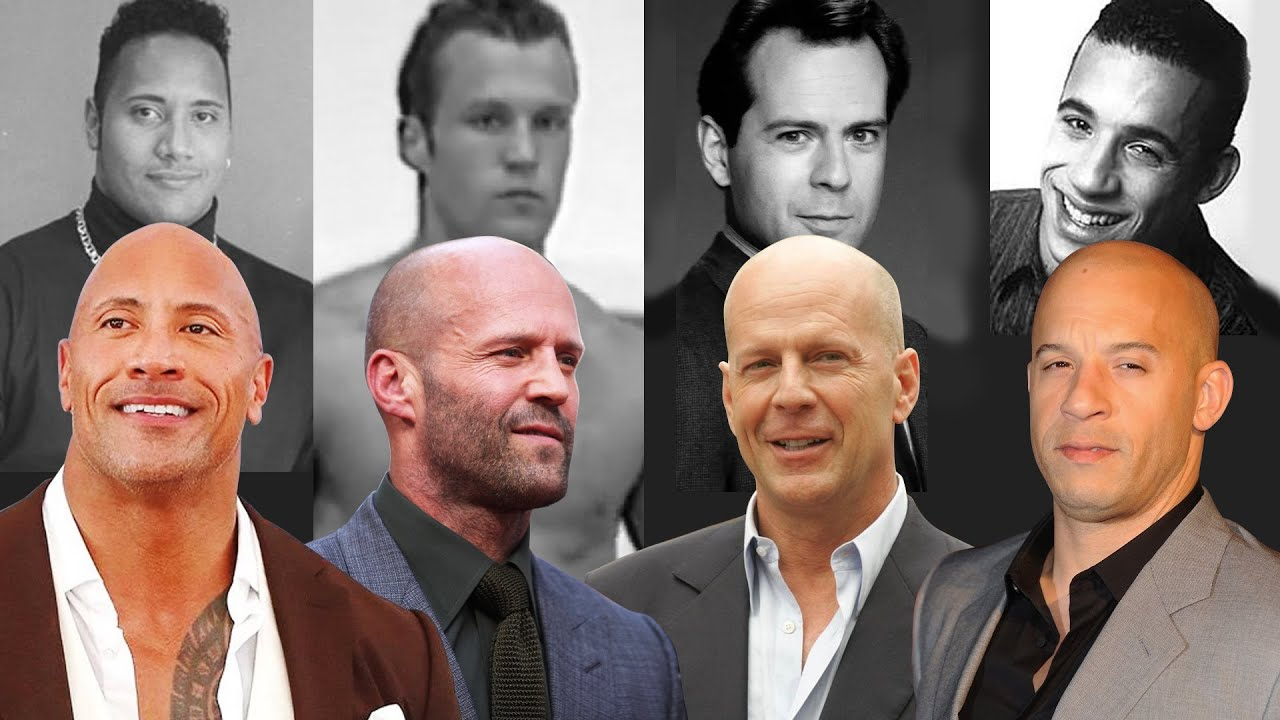 """""""Just Go Bald Because The Rock, Bruce Willis & Jason Statham Are Attractive"""""""