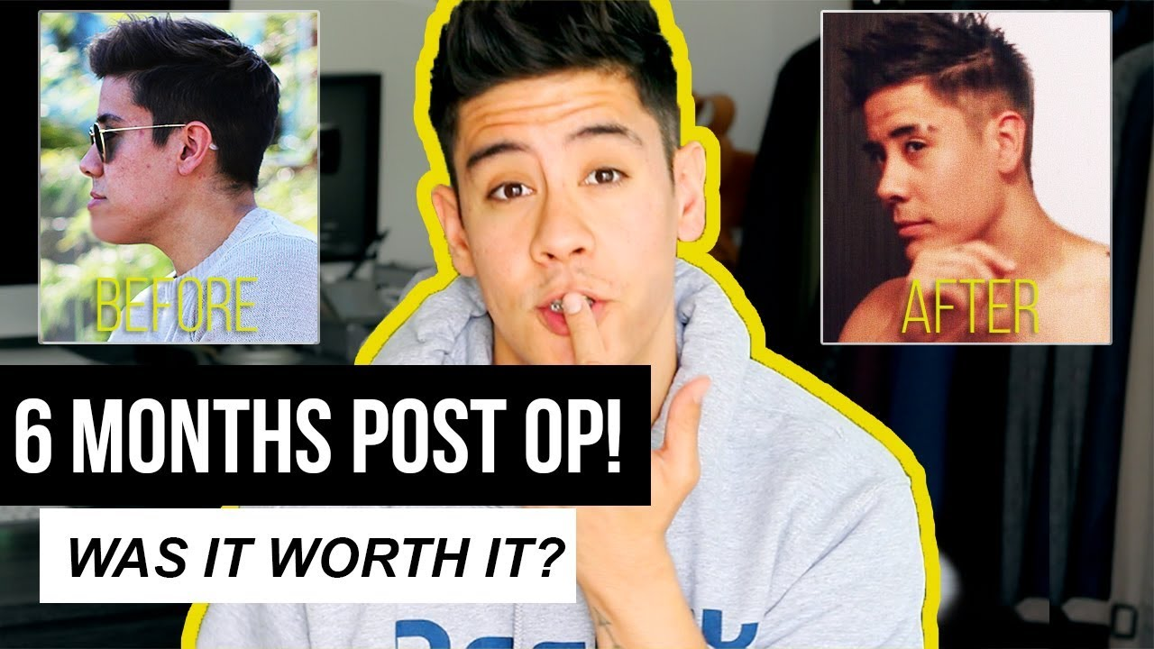 WAS MY JAW SURGERY WORTH IT??? 🤔 (6 MONTHS POST OP RESULTS!) | JAIRWOO