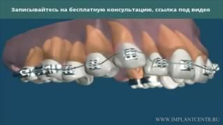 Безлигатурная керамическая брекет система(Подробности на https://zubi.pro/ortodontiya/brekety-keramicheskie-bezligaturnye.html брекеты керамические безлигатурные керамические..., 2016-10-31T15:45:03.000Z)