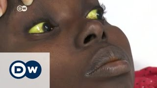 Yellow fever epidemic spreads in Angola | DW News