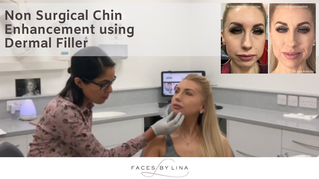 Nonsurgical chin augmentation to help with a weak chin using
