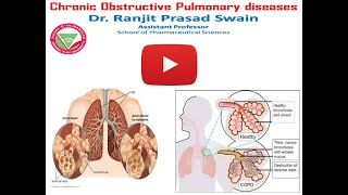 Chronic obstructive pulmonary disease ...