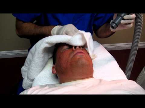Acne Scar Removal-Deep Erbium Laser Peel-Cerritos-Norwalk-Bellflower-Buena Park-Long Beach-Lakewood
