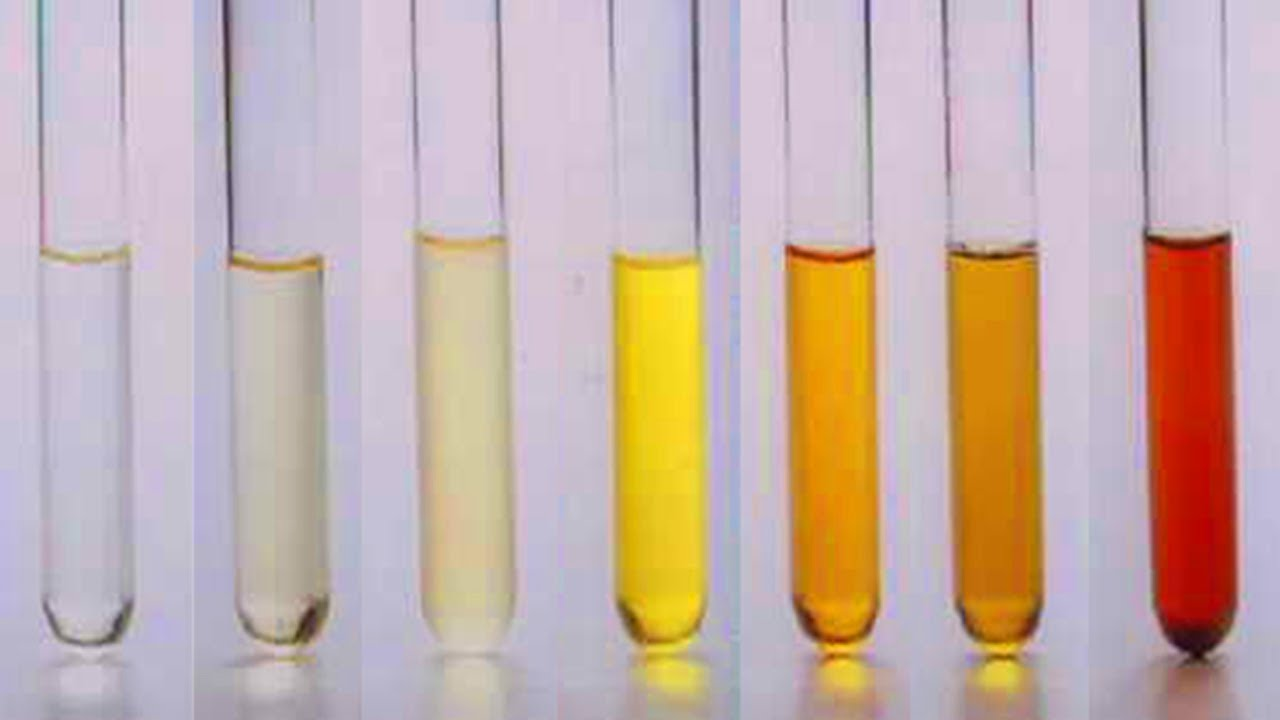 The Color of Your Urine Is a Health – Indicator