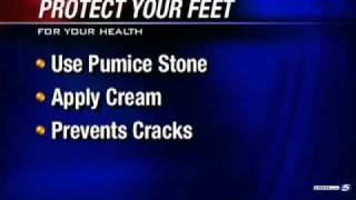 Report: Sandals Pose Danger To Foot Health
