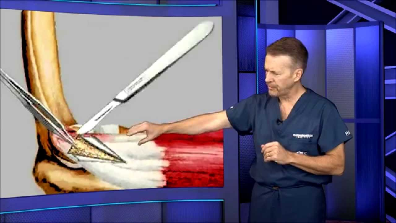 Discussion on this topic: Treatment for tennis elbow in hindi Video, treatment-for-tennis-elbow-in-hindi-video/