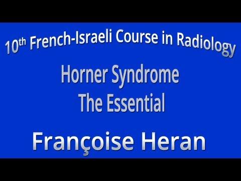 Horner Syndrome the Essential - Françoise Heran
