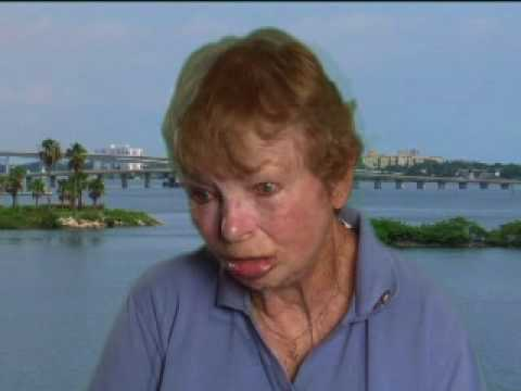 Daytona Beach Medical Malpractice Lawyers - Annes Testimony