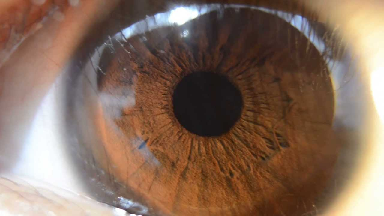 Detailed Brown Iris HD Macro Nikon D5100 (Music by Dax Johnson- Childs ... Brown Eyes Iris