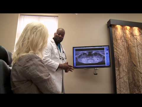 What is  Recovery like after Dental Implant Surgery