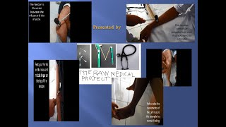 Deep Tendon reflex assessment: Step by step procedure