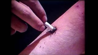 Stupid drunk man Redneck hick white trash hillbilly arm burned cigarette alcoholic - SUPER PRANK