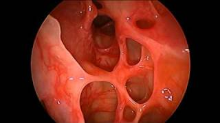 The Nasal Cavity Appearance After-Functional Endoscopic Sinus Surgery (FESS)
