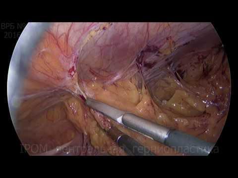 Вентральная грыжа симптомы и методы лечения