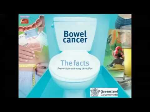 Bowel cancer screening and early detection