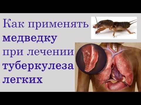 Как применять медведку при лечении туберкулеза легких
