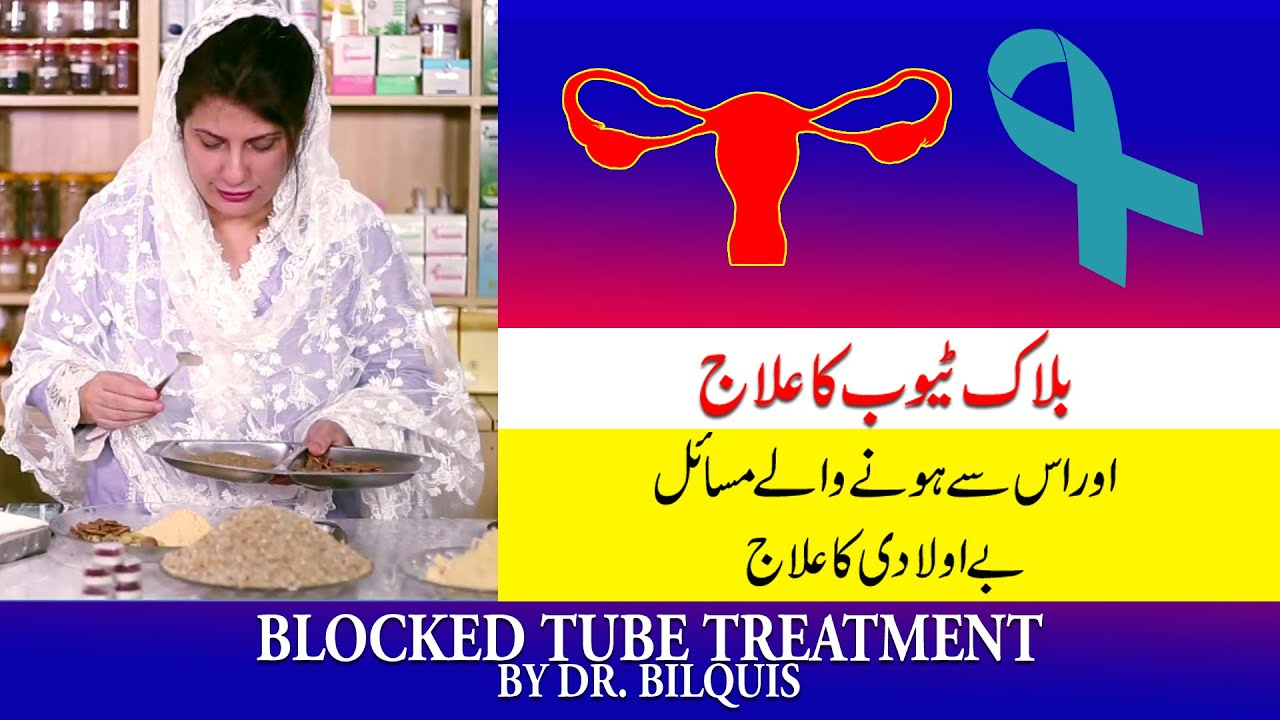 Blocked Tubes Treatment by Dr  Bilquis Shaikh || Female Infertility || ||  Be Auladi ka I